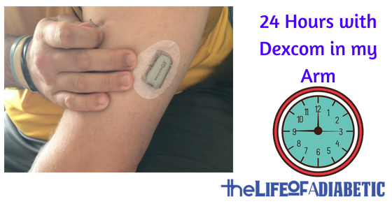 24 hours with dexcom in arm