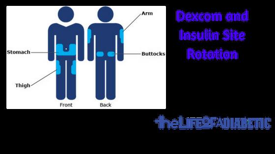 dexcom and insulin site rotation